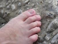 Jak zapobiegać zespołowi stopy cukrzycowej?